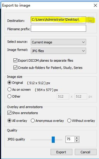 MicroDicom viewer(Dicom格式看图软件)下载